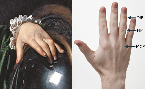 Detail of Mary Magdalen's Hand from Martha and Mary by Caravaggio with a photo of a hand with the phalangeal joints labelled